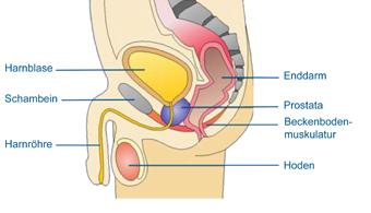 Harninkontinenz beim Mann