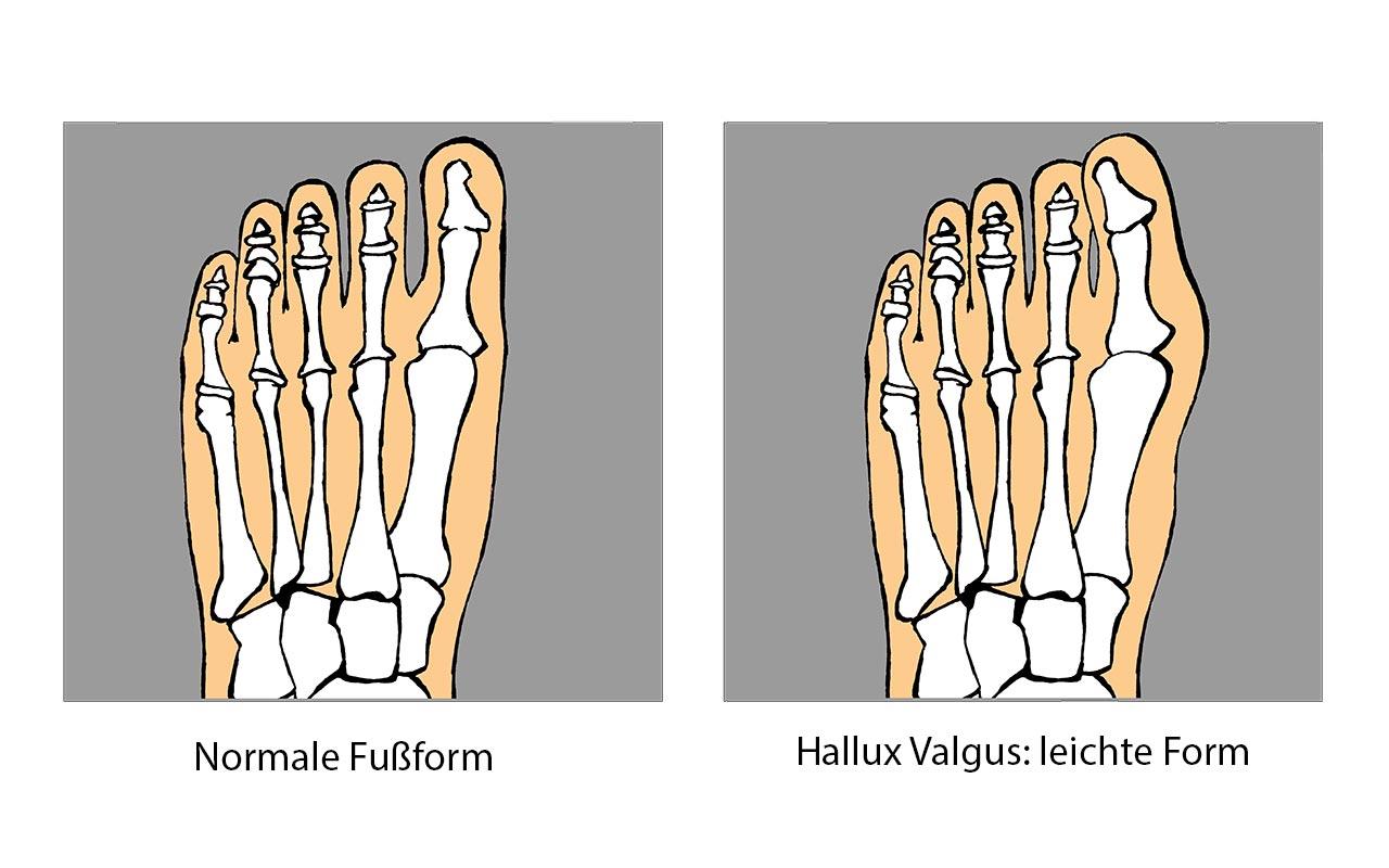 Hallux Valgus - schiefer Zeh - Indikation