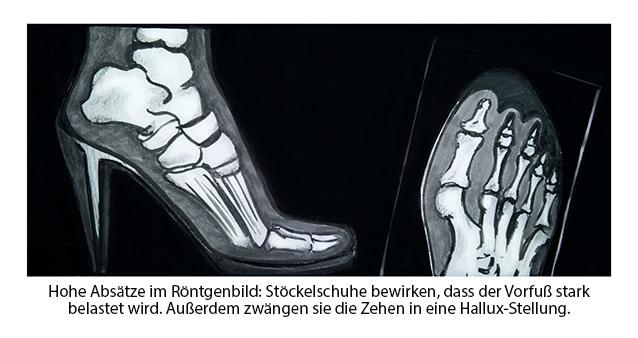 Hallux Valgus - schiefer Zeh - Ursachen-HighHeels-Röntgenbild